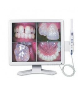 INTRAORAL CAMERA WITH MONITOR